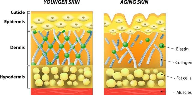 bigstock-younger-skin-and-older-skin-77343413.jpg