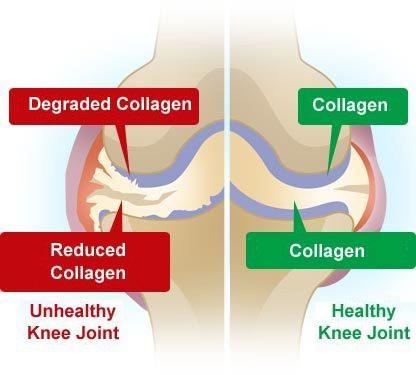 joint-pain-supplements-collagen-1.jpg